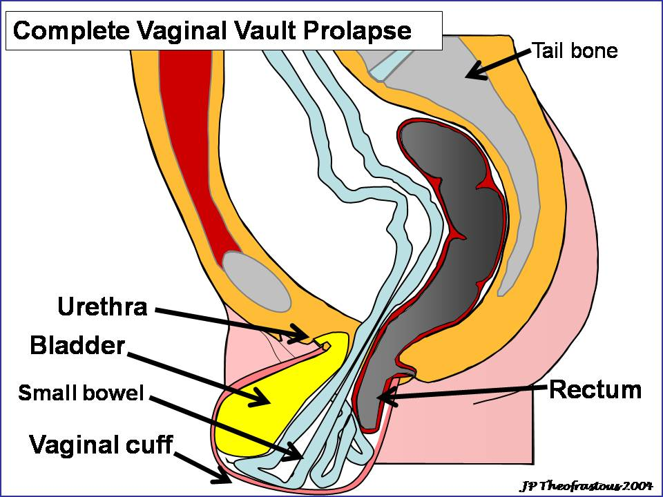 Western Carolina Womens Specialty Center Vaginal Prolapse