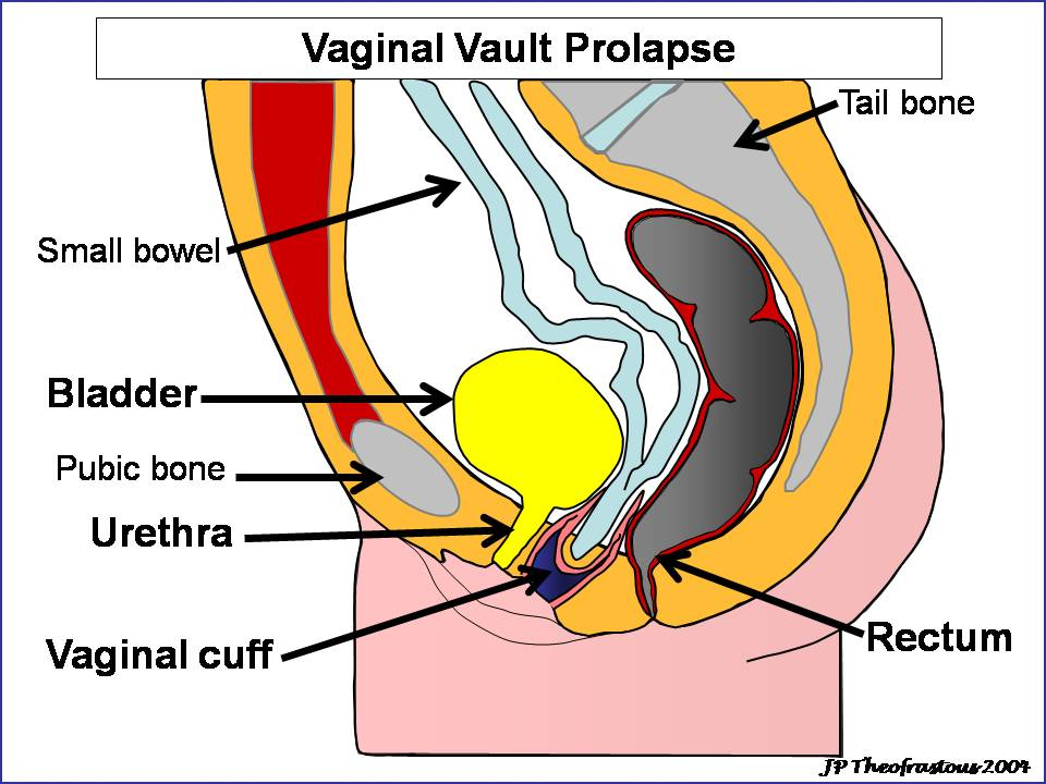 Western Carolina Women's Specialty Center » Vaginal Prolapse